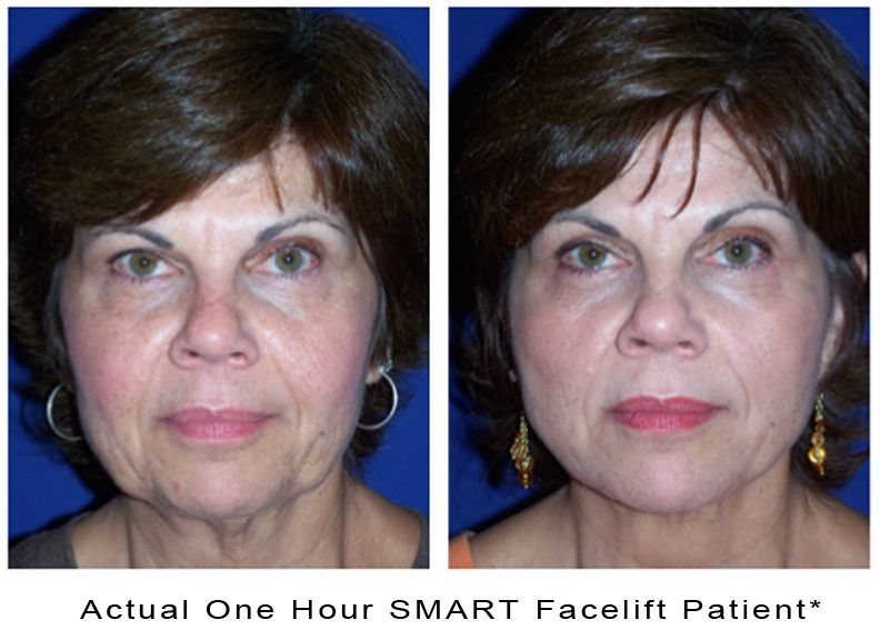 actual-photo-1hour-smart-facelift-a
