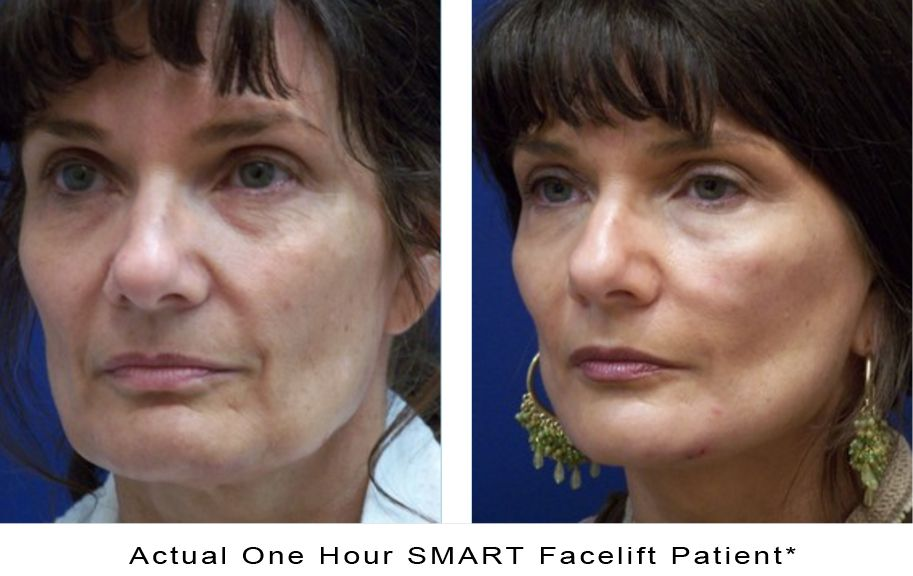 actual-photo-1hour-smart-facelift-b