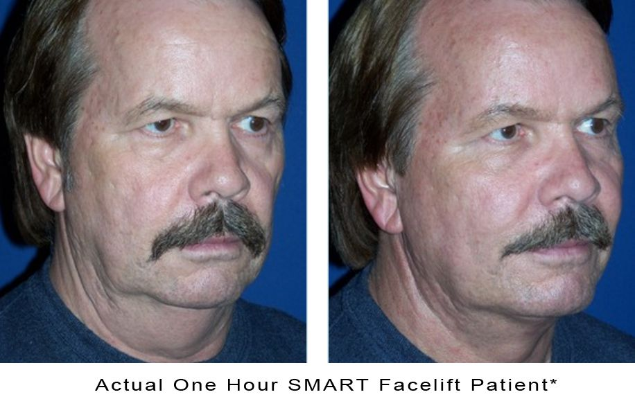 actual-photo-1hour-smart-facelift-c