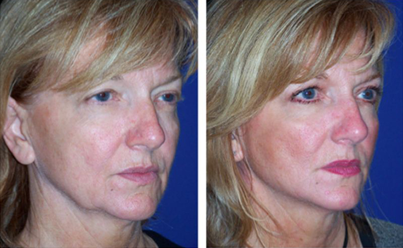 actual1hoursmartfacelift-1a